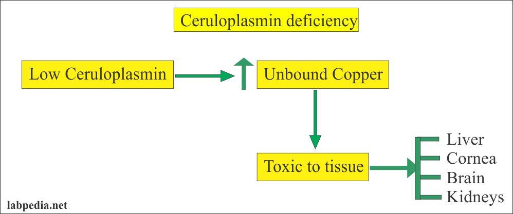 ceruloplasmin deficiency