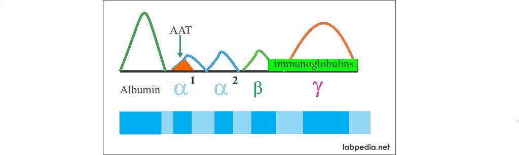 alpha-1- antitrypsin electrophoresis