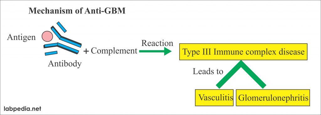 Anti-Glomerular basement membrane antibody (Anti-GBM antibody)