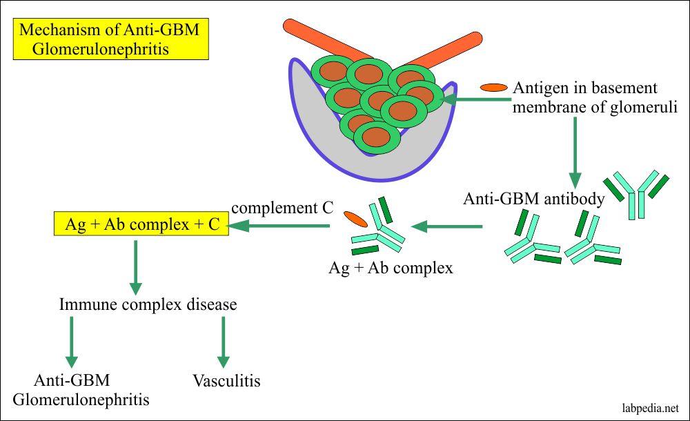 Anti-GBM glomerulonephritis mechanism