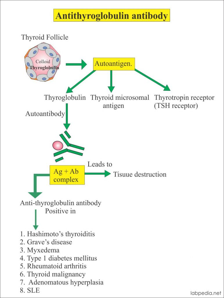 Antithyroglobulin antibody and thyroid diseases
