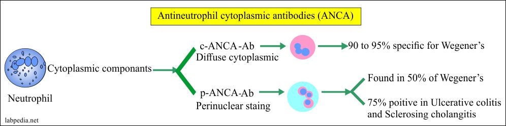 Antineutrophil cytoplasmic antibody (ANCA), Wegener's Granulomatosis