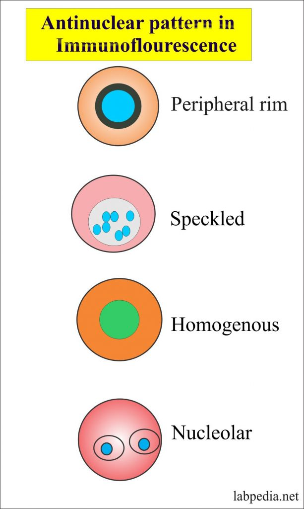 Antinuclear pattern by immunofluorescence