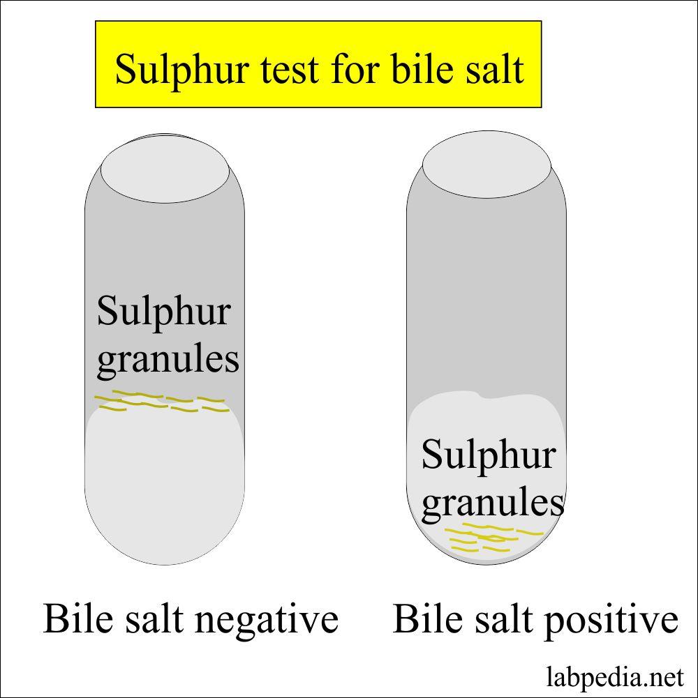 Bile  salts in Urine