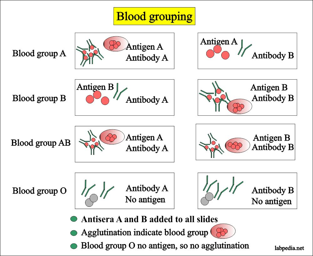 Blood banking – part 1- Blood Grouping (Blood ABO and Rh ...