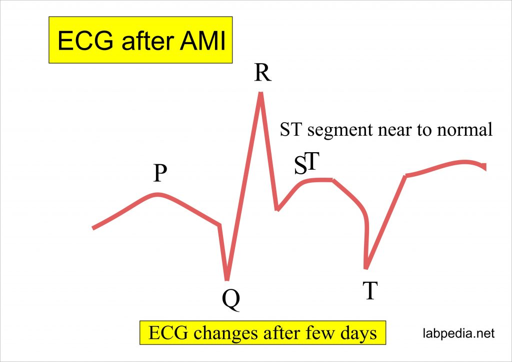 AMI changes on ECG after few days