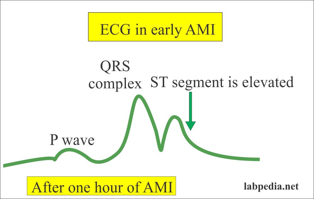 AMI and ECG changes