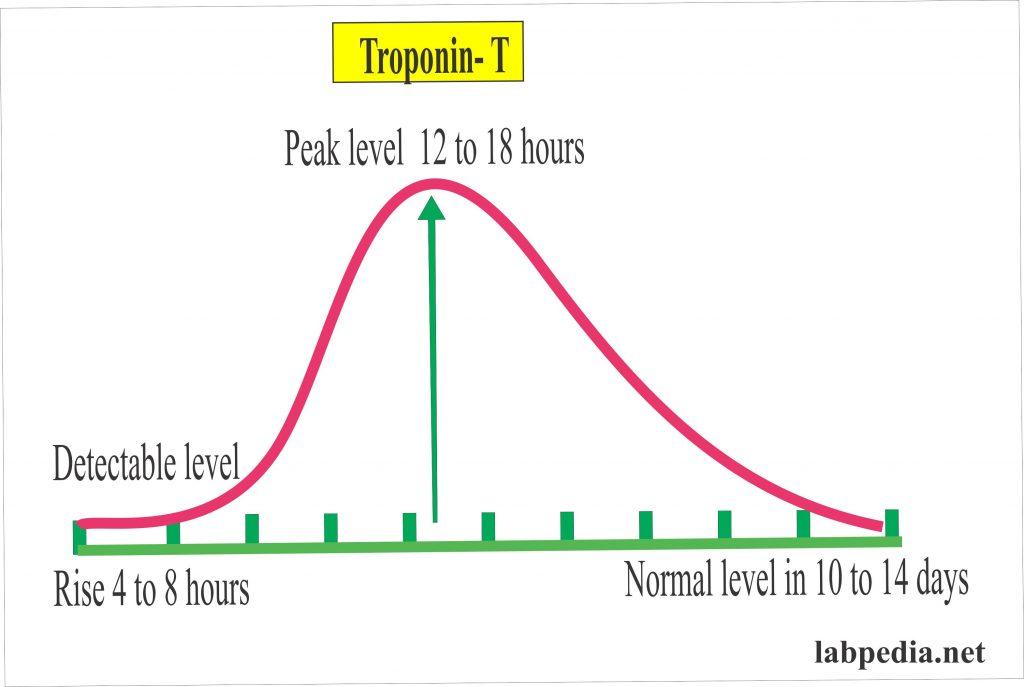 Troponin-T in AMI