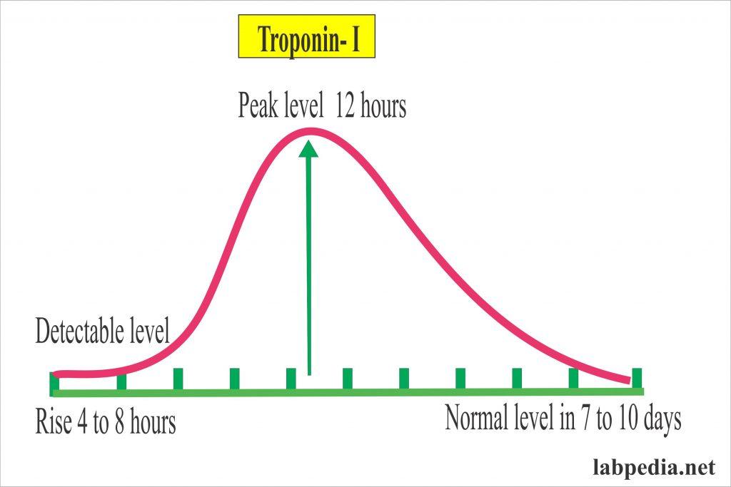 Cardiac Marker – Part 3 – Troponins, Troponin-T, Troponin-I