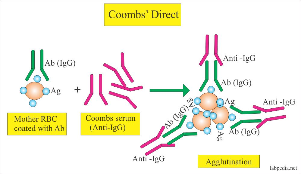 Coombs' Test – Part 1- Coombs' Direct, Direct-Anti-globulin test
