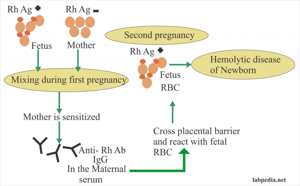 Coomb's Direct for fetal RBC coated with antibody