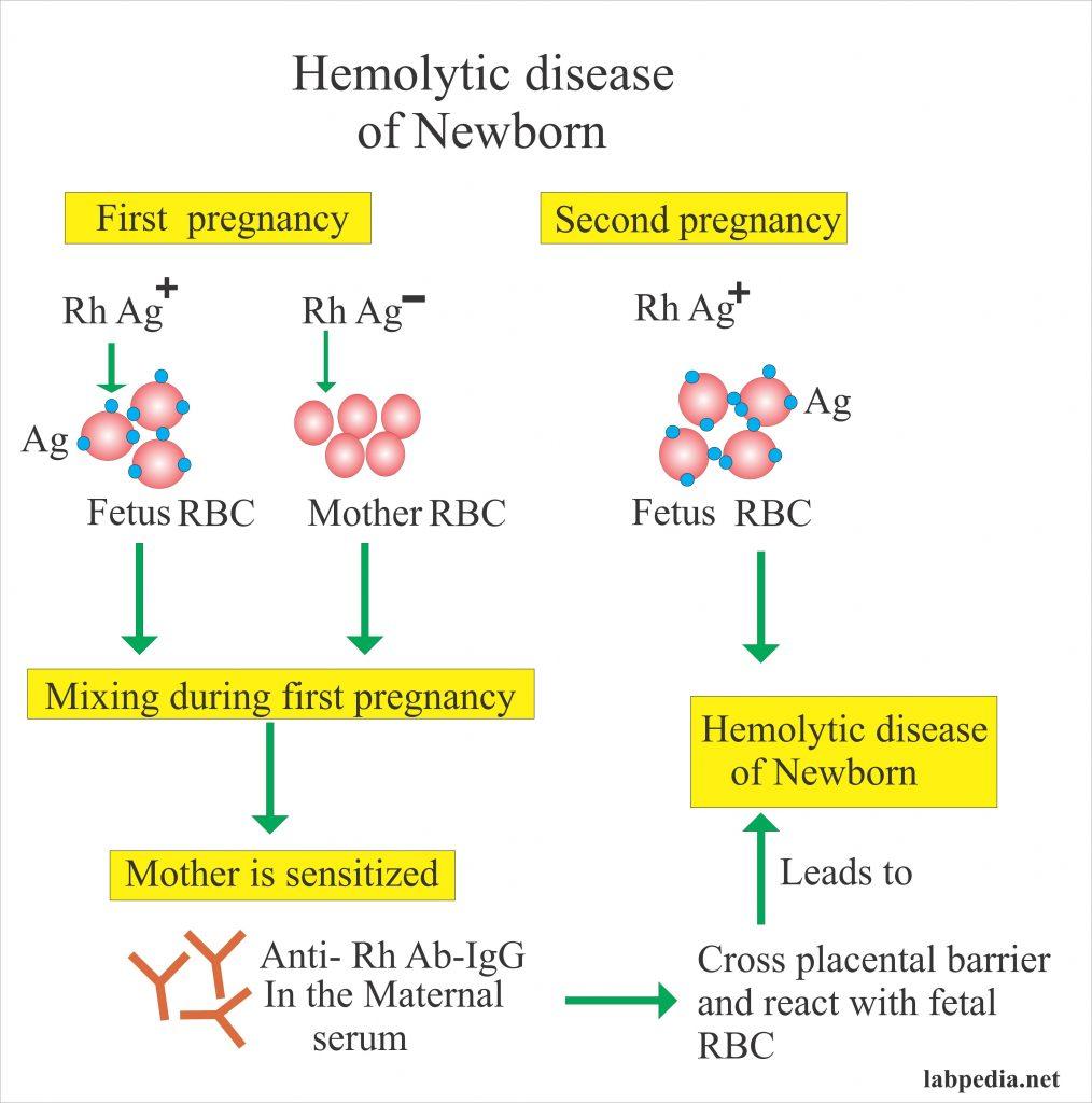 Coombs' Test – Part 3 – Hemolytic Anemia of Newborn, Rh-antibody, Anti-D Antibody