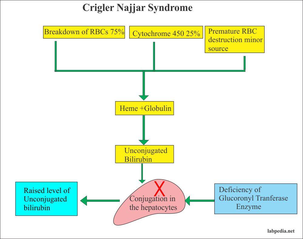 Crigler-Najjar Syndrome