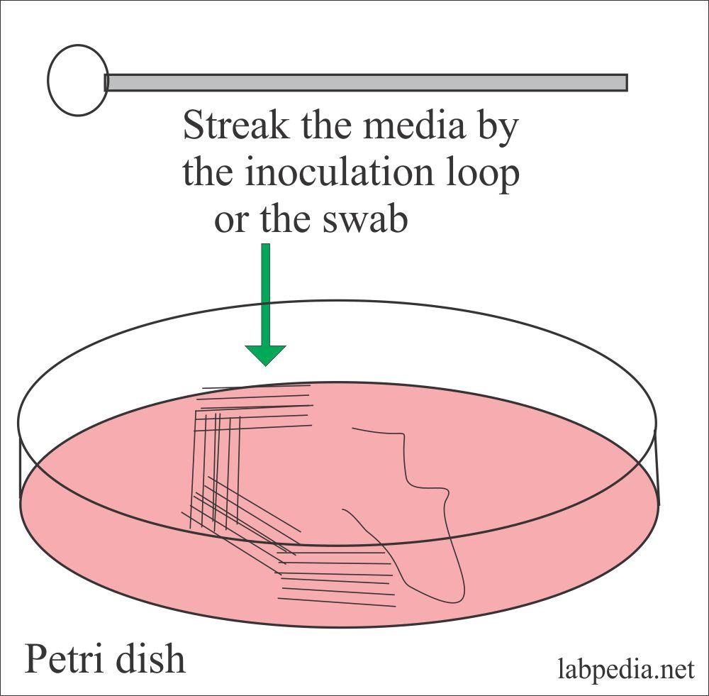 Streaking method shown