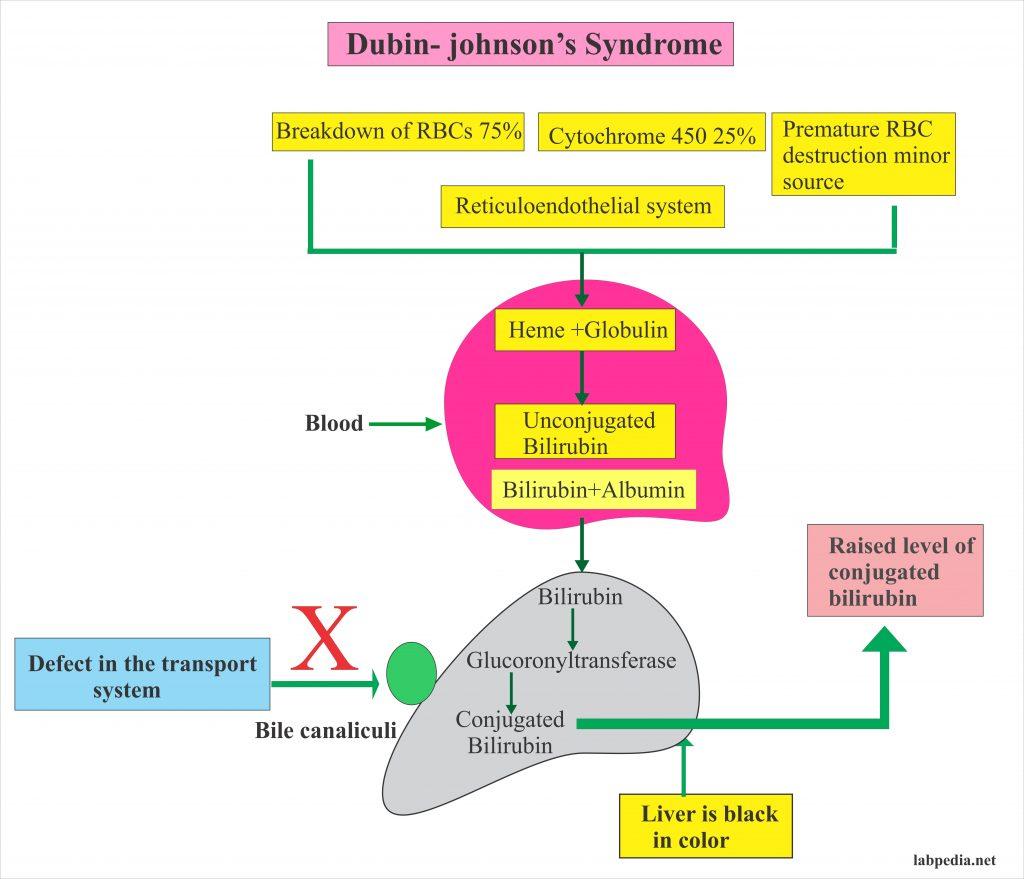 Dubin-Johnson Syndrome Diagnosis