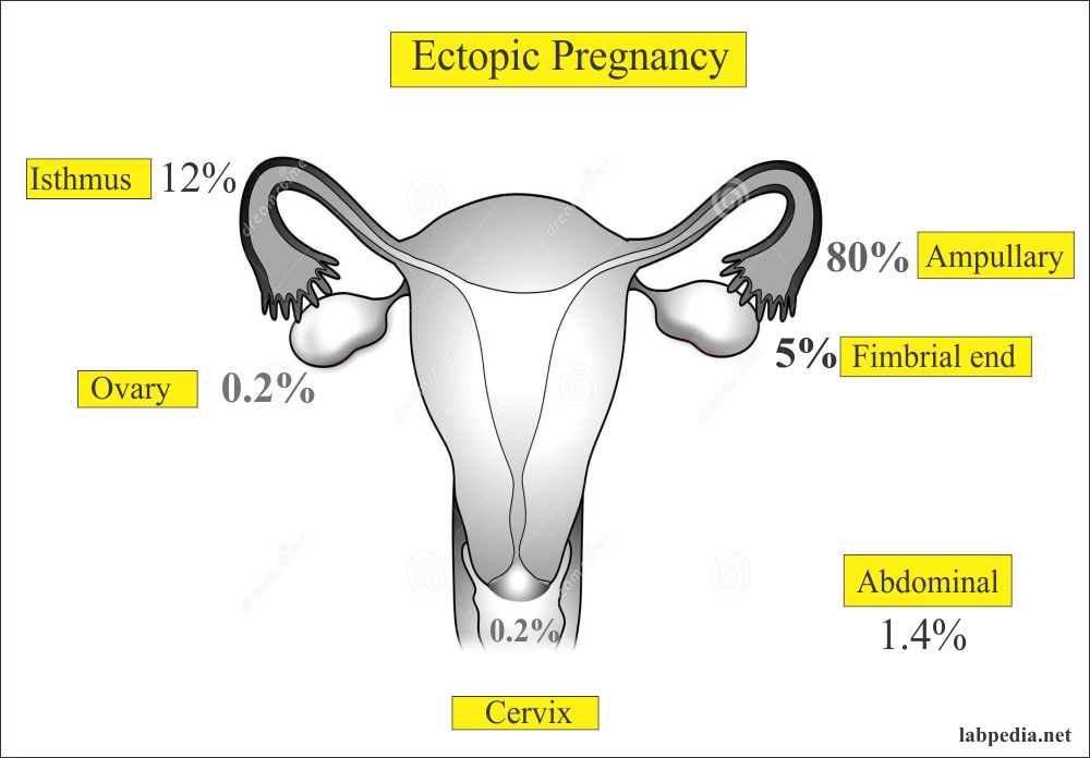 Ectopic pregnancy sites