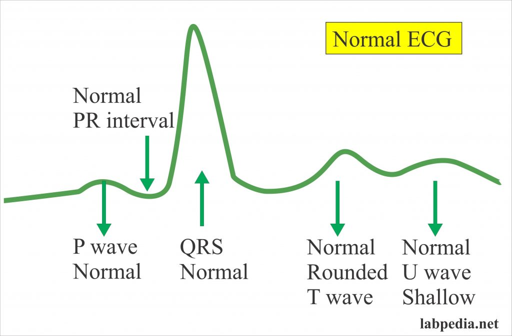 Normal ECG changes
