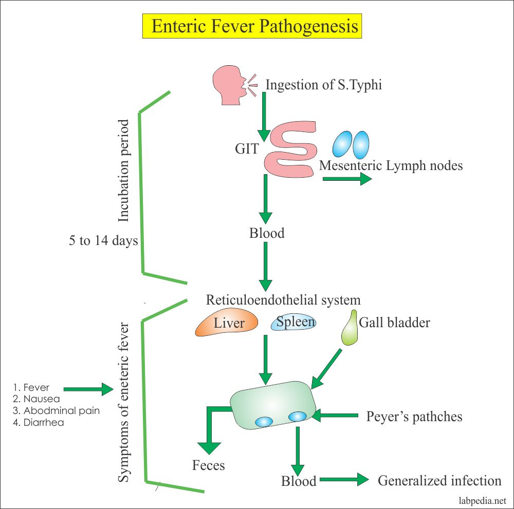 Enteric fever pathogenesis