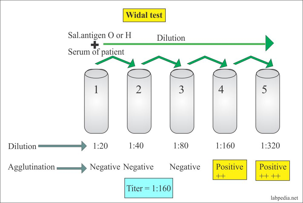 Widal test titeration