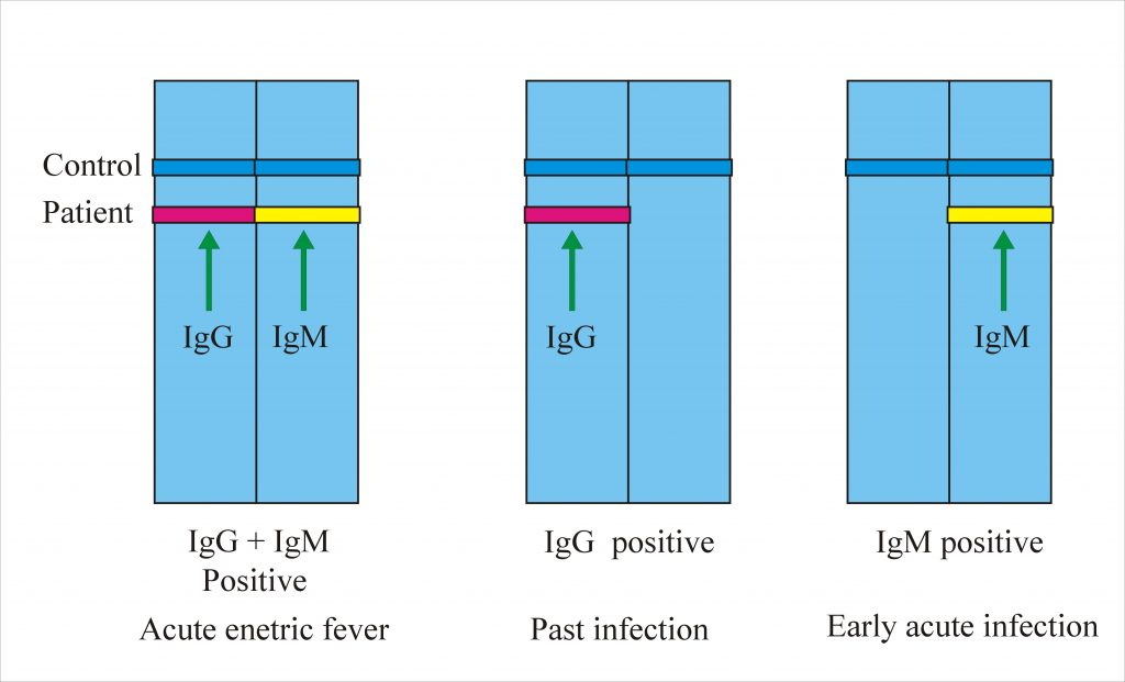 Enteric fever – Part 4 – Typhidot Test for Diagnosis of Enteric fever