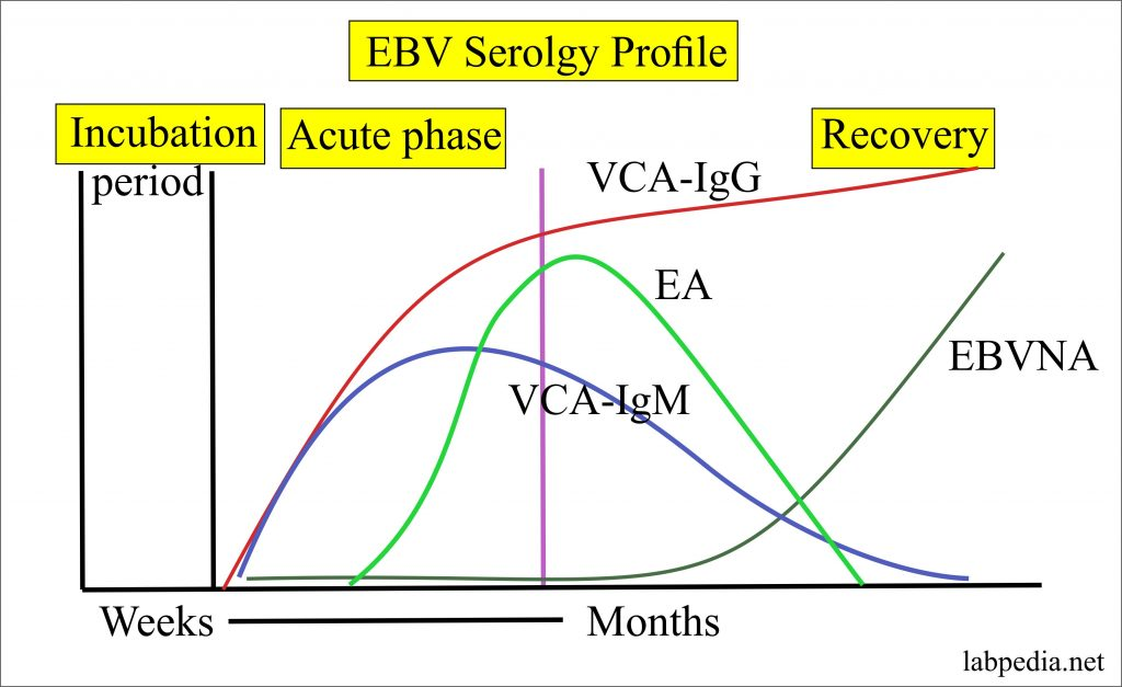Epstein-Barr virus (EBV), Infectious Mononucleosis