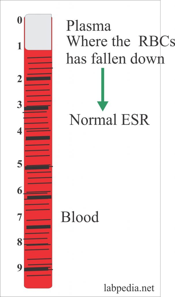 Erythrocyte Sedimentation Rate – Part 1 – (ESR), Sedimentation Rate
