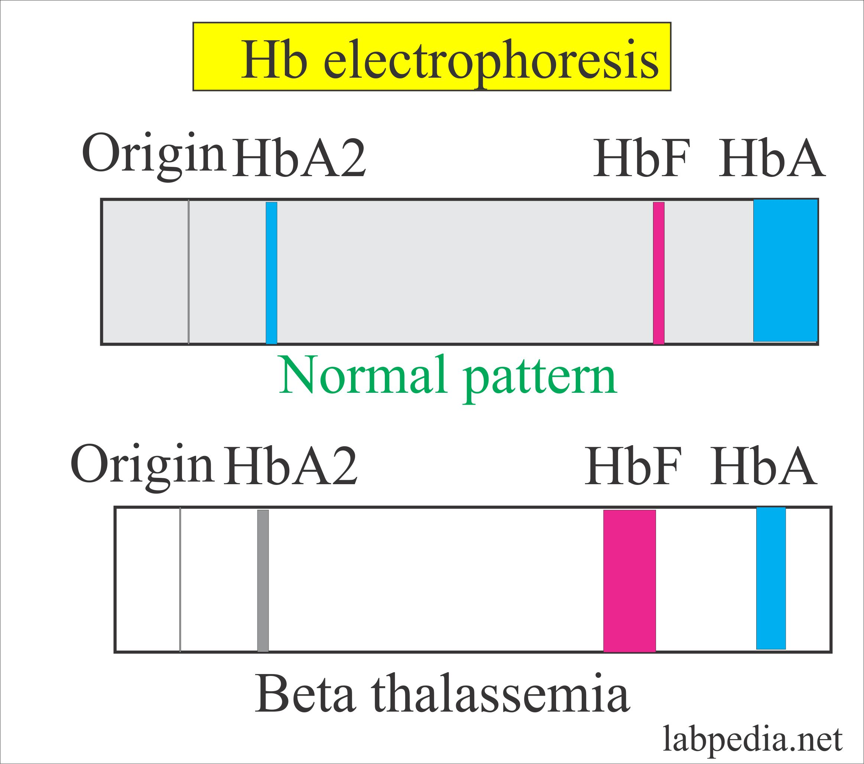 Fetal Hemoglobin Hbf Alkali Resistant Hemoglobin Fetal Hbf Labpedia Net