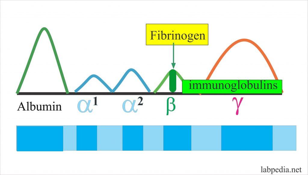 Fibrinogen on electrophoresis
