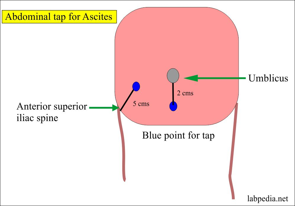 Site for aspiration of ascitic fluid