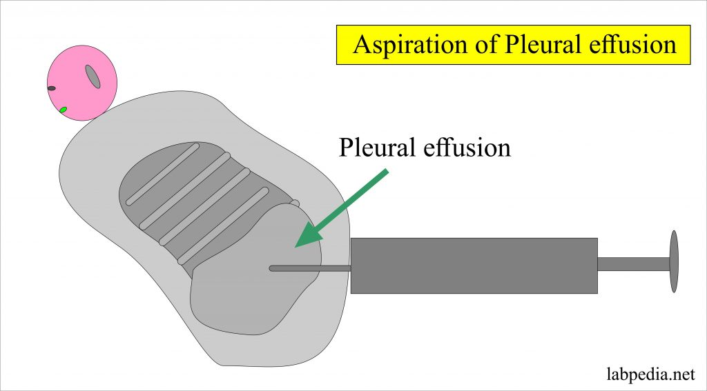 Fluid Analysis – part  6 – Pleural Fluid Analysis, Aspiration procedure, Thoracentesis