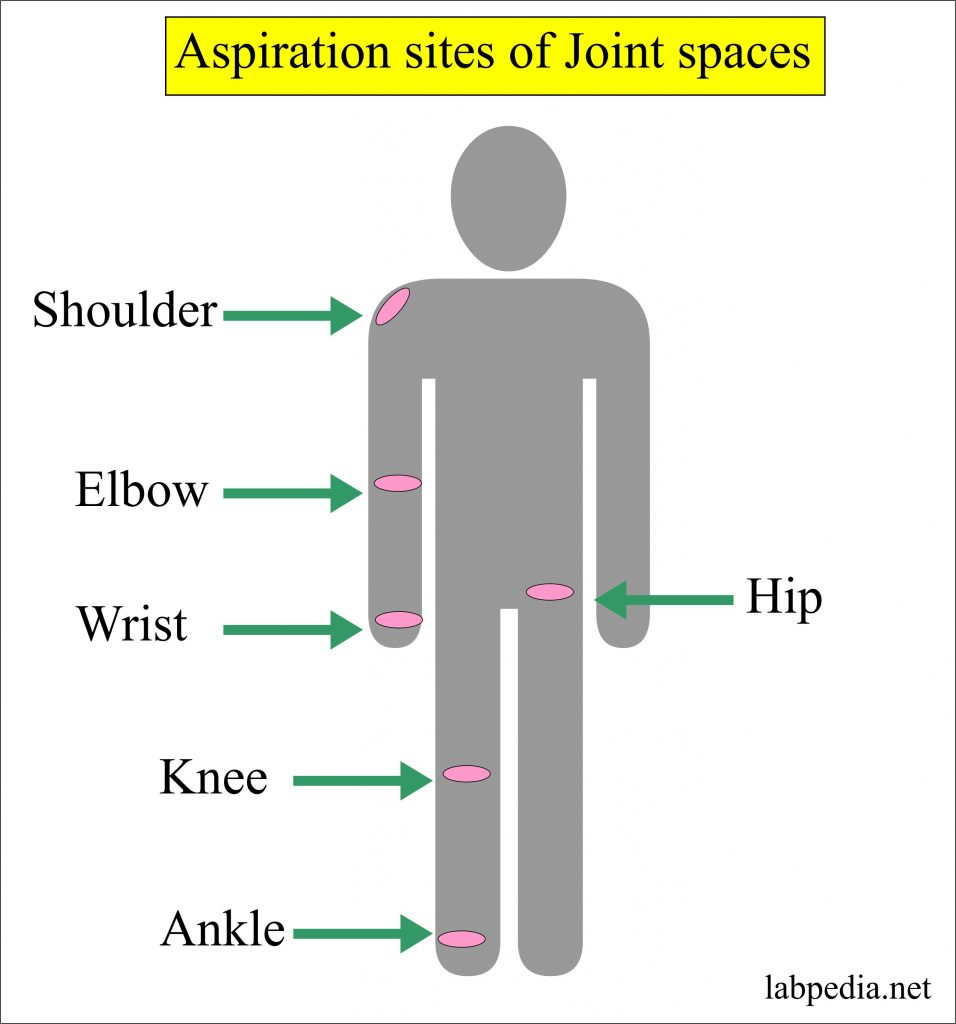 Sites for the aspiration of joint fluid