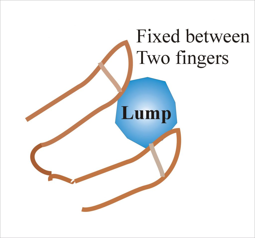 Diagram showing how to fix the lump