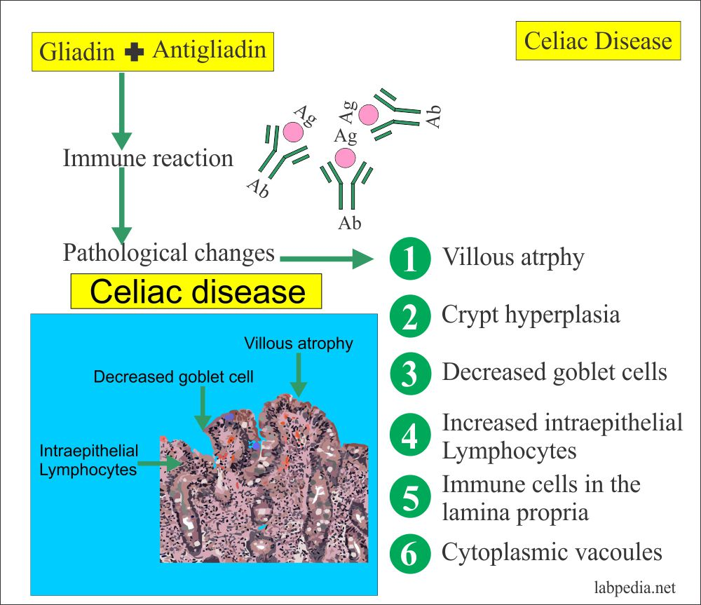 Gliadin Antibodies IgA, IgG (Endomysial Antibodies) Celiac disease and Celiac Sprue