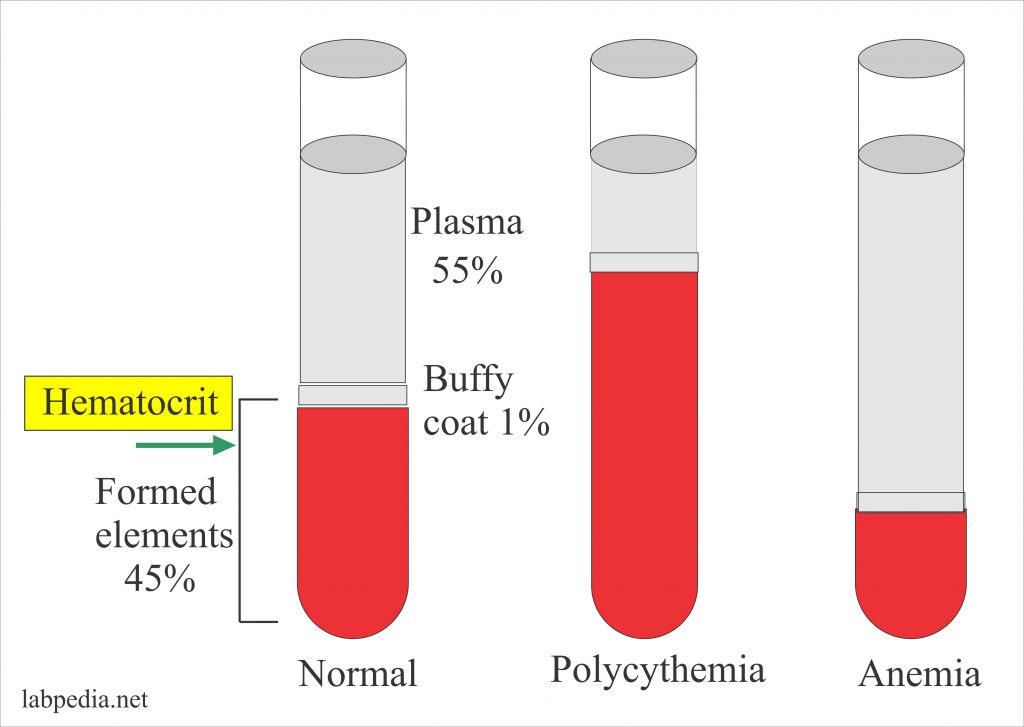 Haemoglobin – Part 5 – Hematocrit (HCT, Hct), Packed Cell Volume (PCV)
