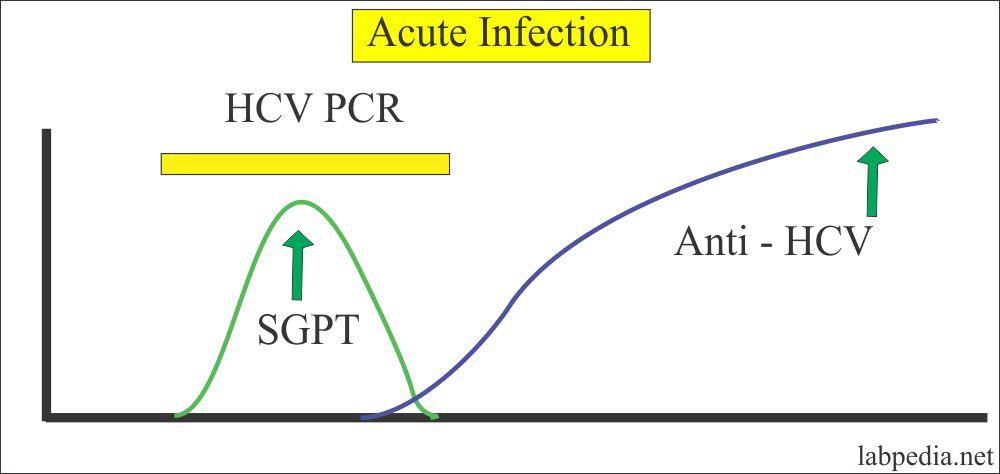 HCV Acute Infection Profile