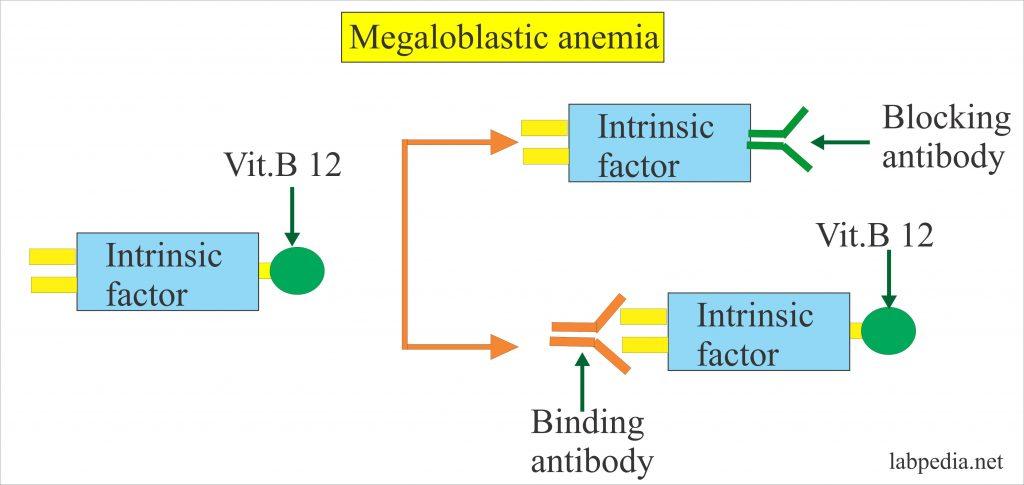 Intrinsic factor Antibody (IF Ab)