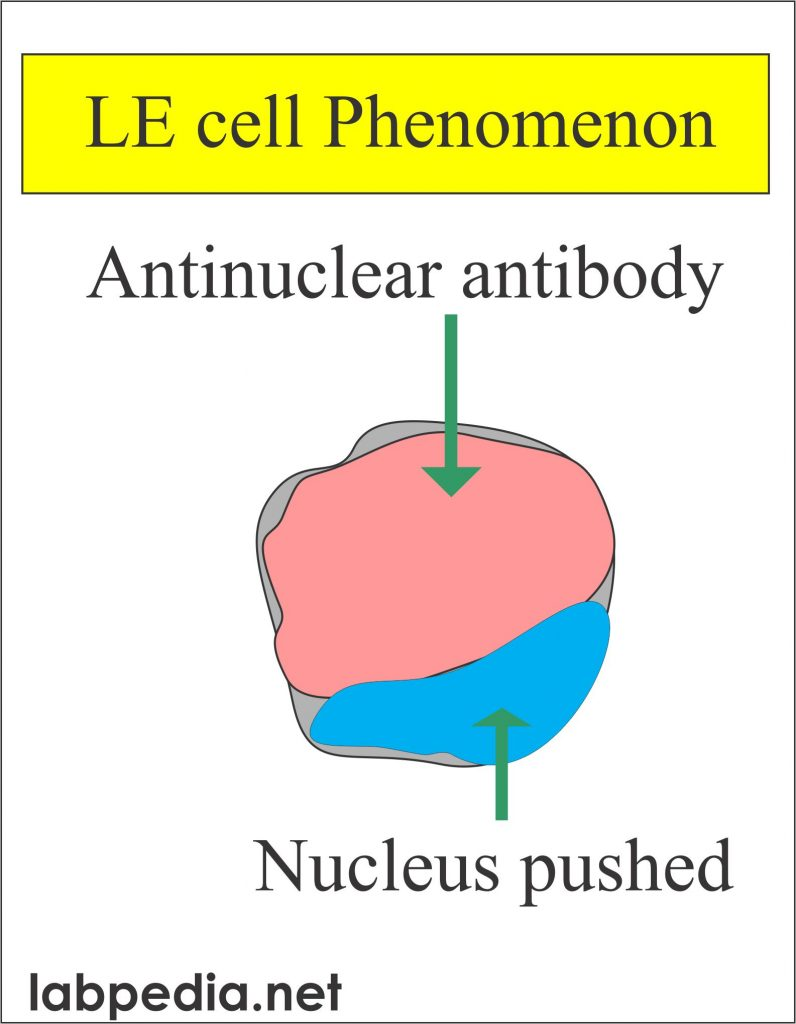 LE cell phenomenon  (Lupus erythematosus cell)
