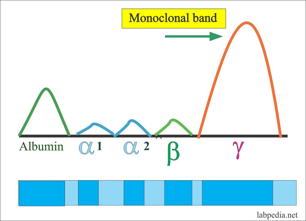 In Multiple Myelomas, the spike is called M-protein (or MM)