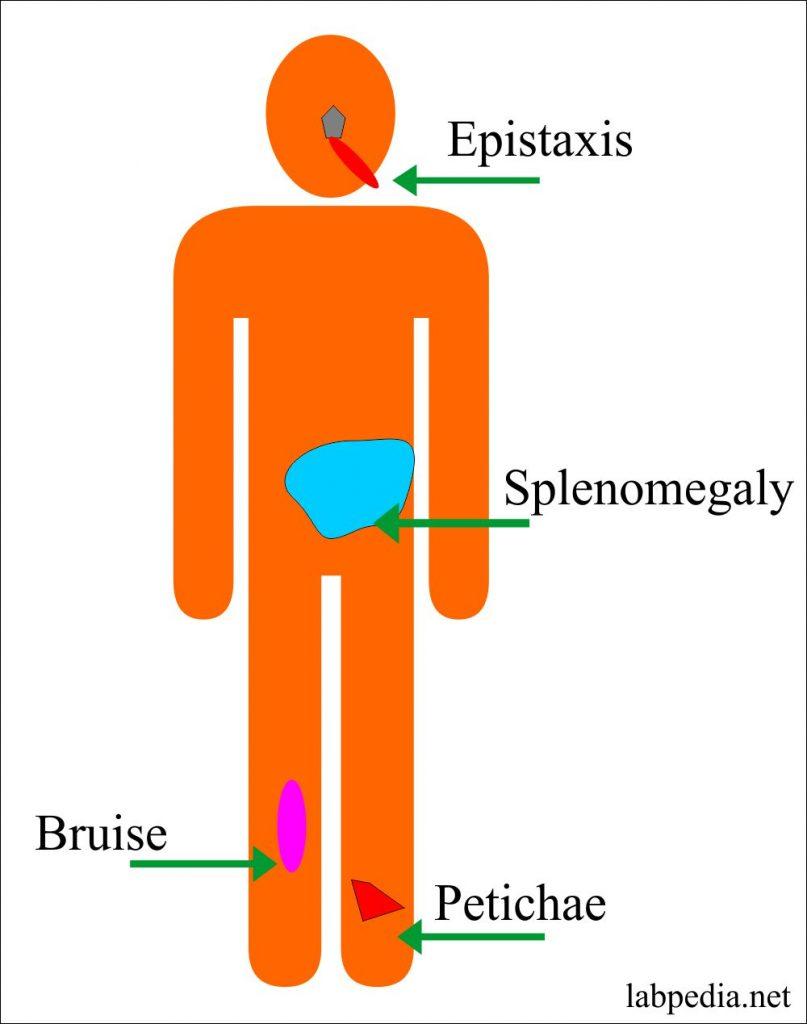 Polycythemia (Erythrocytosis), Polycythemia Rubra Vera, and Secondary Polycythemia