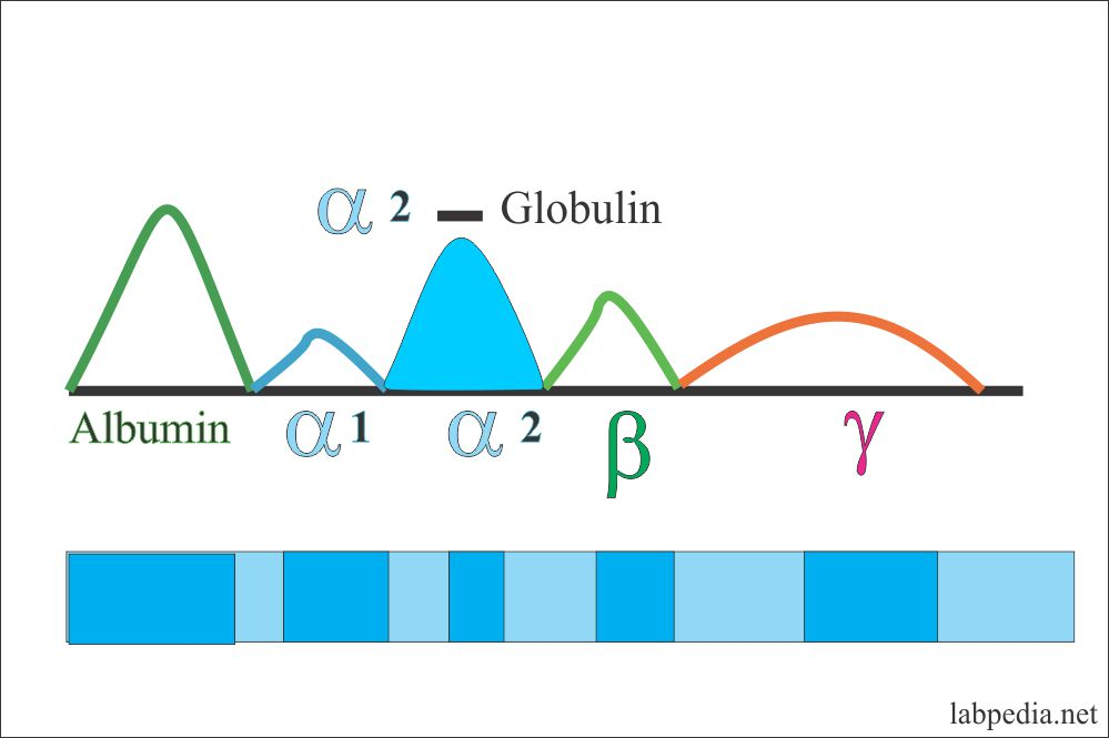 Electrophoresis alpha-2- globulin