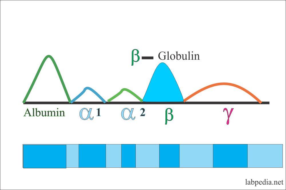 Electrophoresis beta- globulin