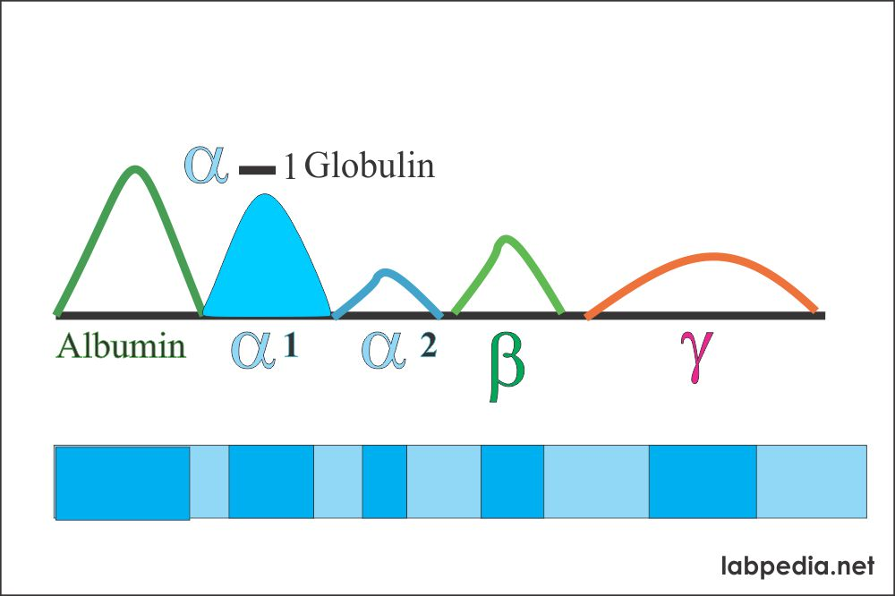 Electrophoresis alpha-1 globulin