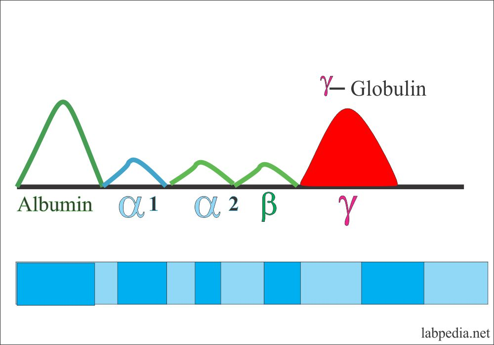 Electrophoresis gamma- globulin