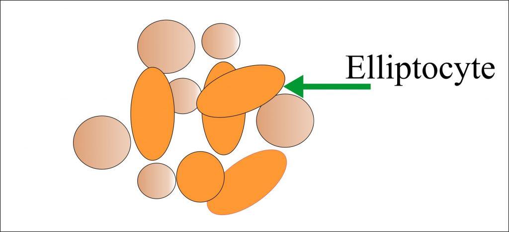 Elliptocytes