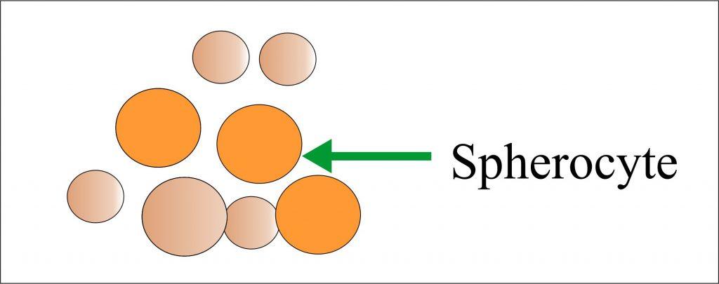 Spherocyte
