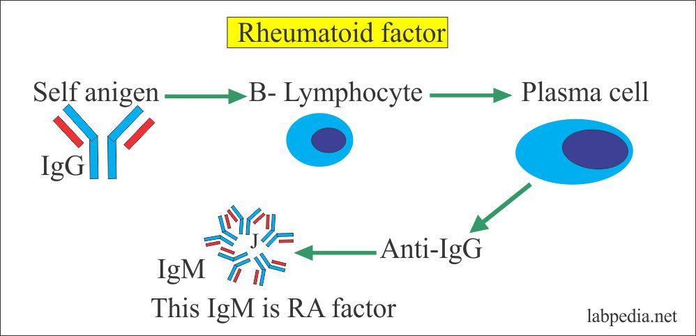 Rheumatoid factor is IgM and IgG