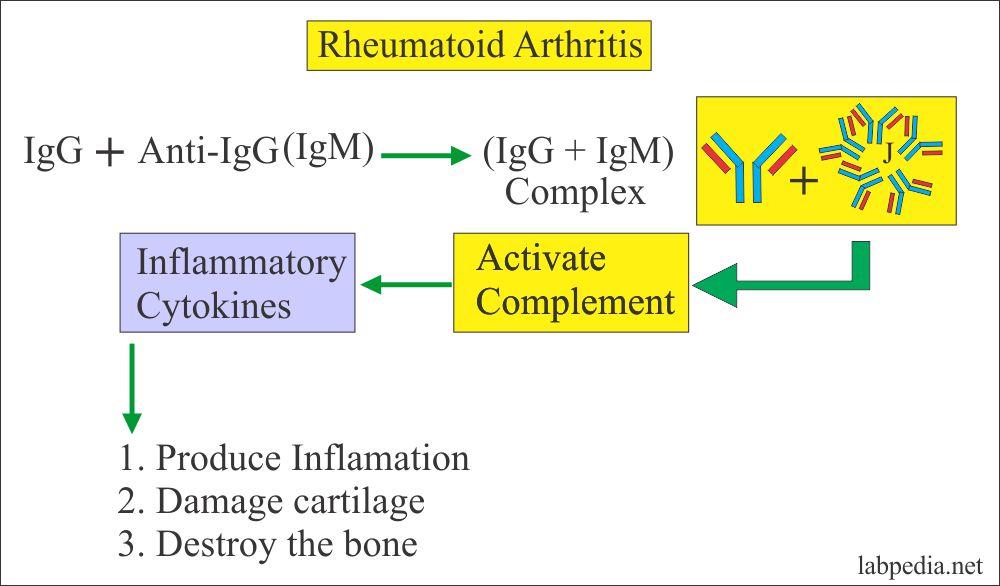 The outcome of rheumatoid arthritis