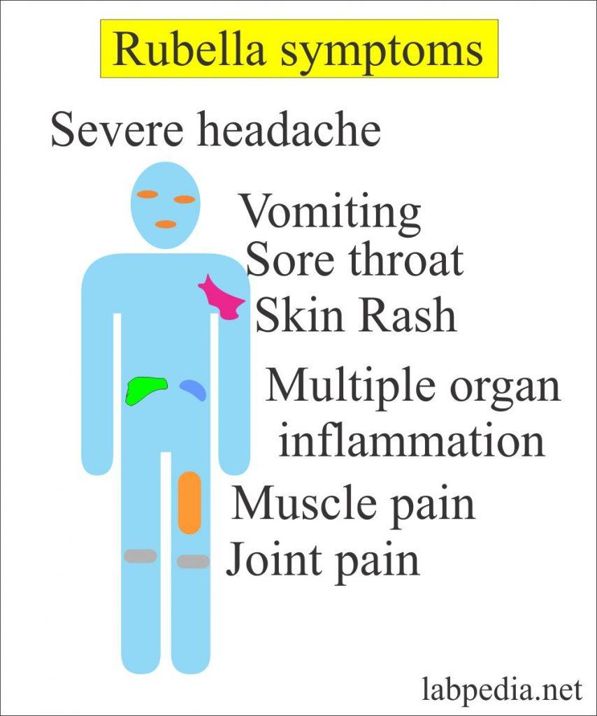 Rubella Symptoms