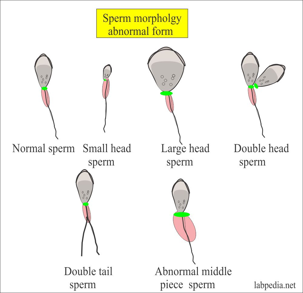 Various forms of the sperms, Normal and Abnormal