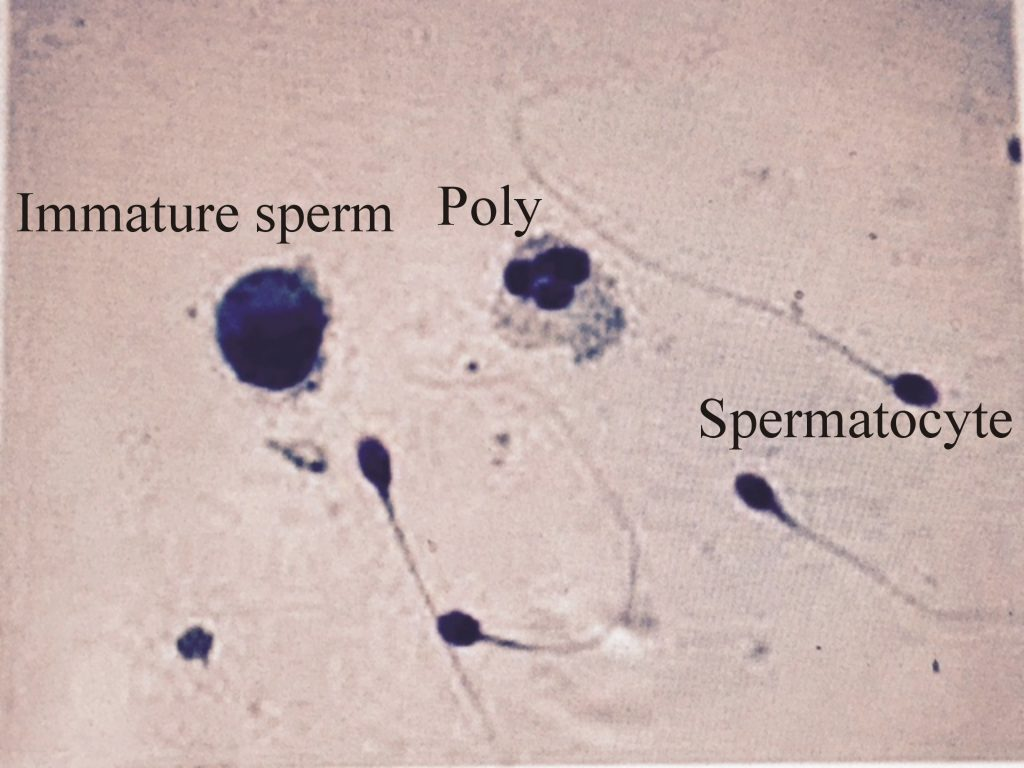 Various forms of the sperms